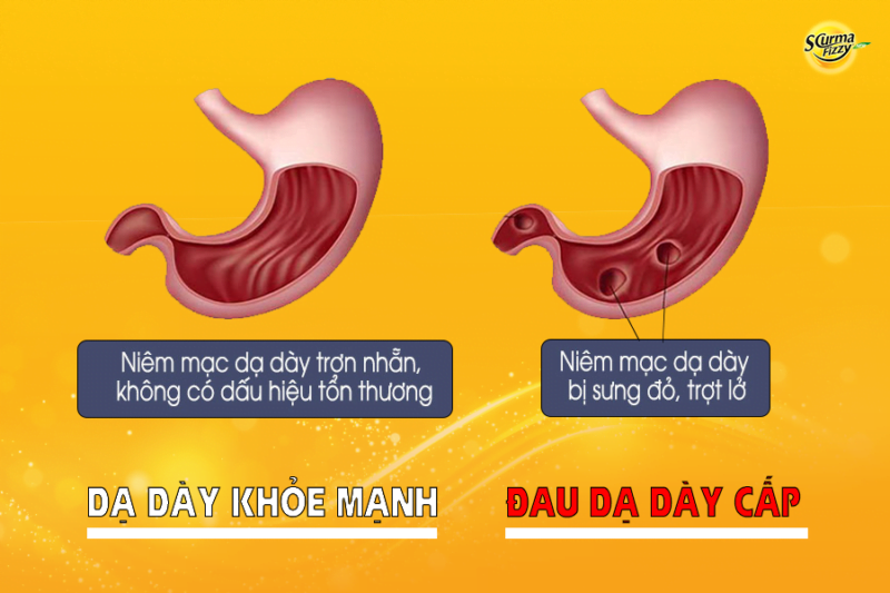 Đau dạ dày cấp