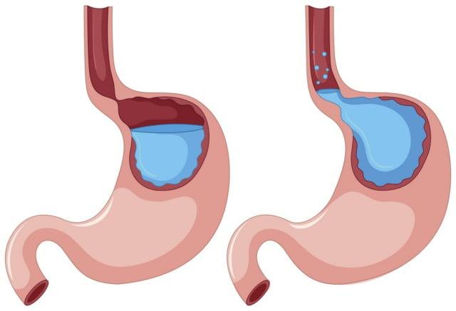 """Trào ngược dạ dày thực quản xuất hiên khi cơ thắt thực quản hoạt động không tốt, không """"khép"""" lại được"""