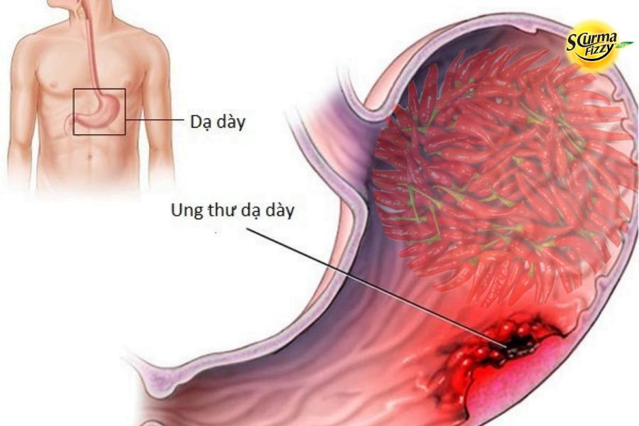 Ăn cay dễ bị ung thư dạ dày