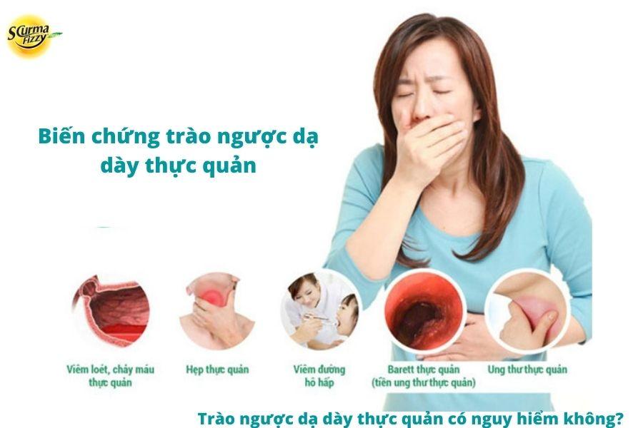 Biến chứng nguy hiểm của trào ngược dạ dày thực quản