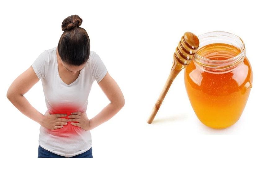 Chữa đau dạ dày bằng mật ong