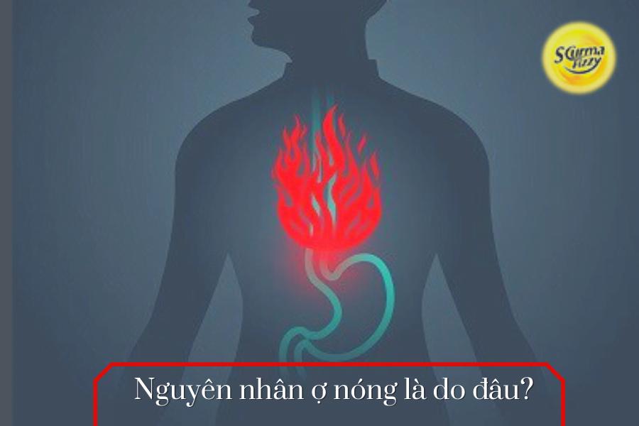 Nguyên nhân ợ nóng là do đâu?