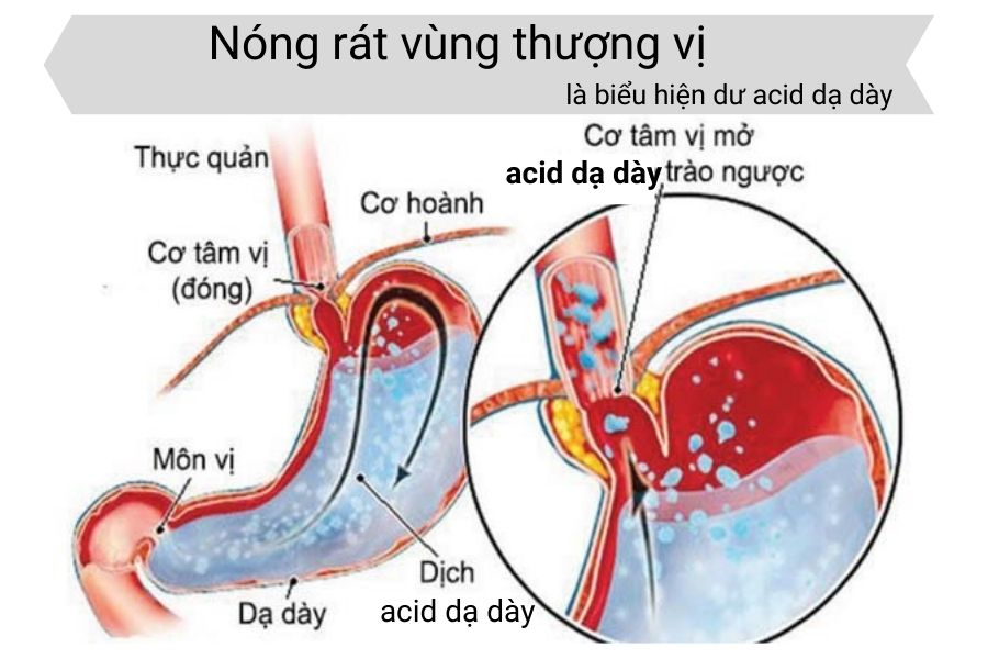 nóng rát vùng thượng vị là biểu hiện thường gặp khi nồng độ acid dạ dày tăng cao