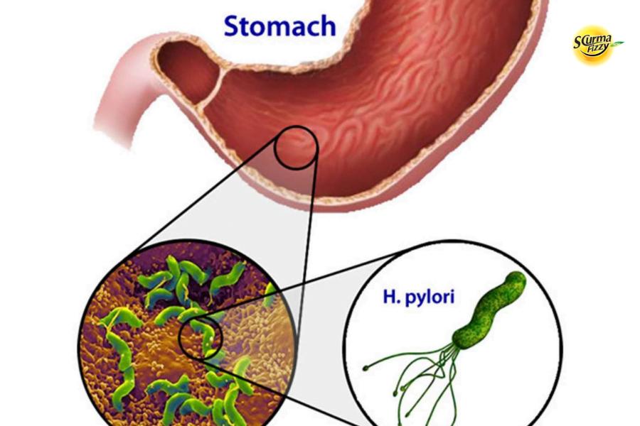 Vì sao con người lại bị vi khuẩn HP dạ dày?