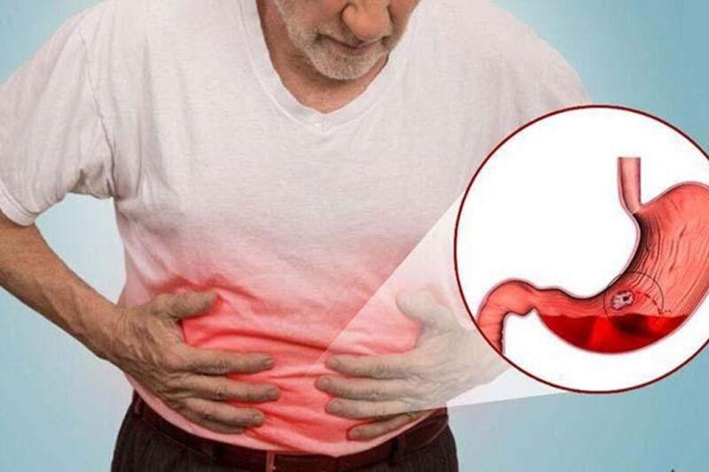 Giảm đau dạ dày tại nhà