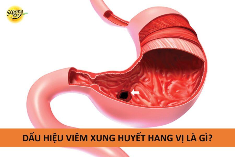 viem-xung-huyet-hang-vi-1