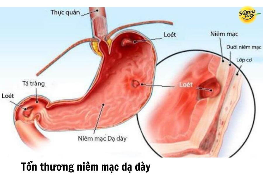 Tổn thương lớp niêm mạc dạ dày gây đau dạ dày