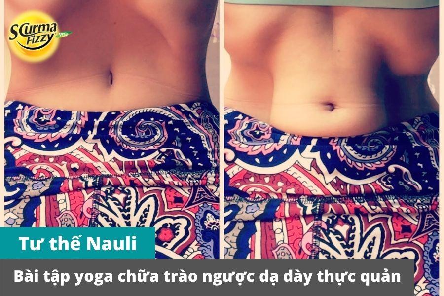 Bài tập Nauli chữa trào ngược dạ dày thực quản hiệu quả