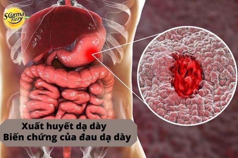 dấu hiệu của đau dạ dày 4