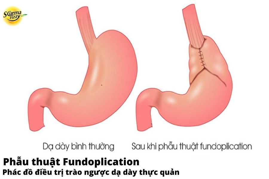 Phẫu thuật fundoplication