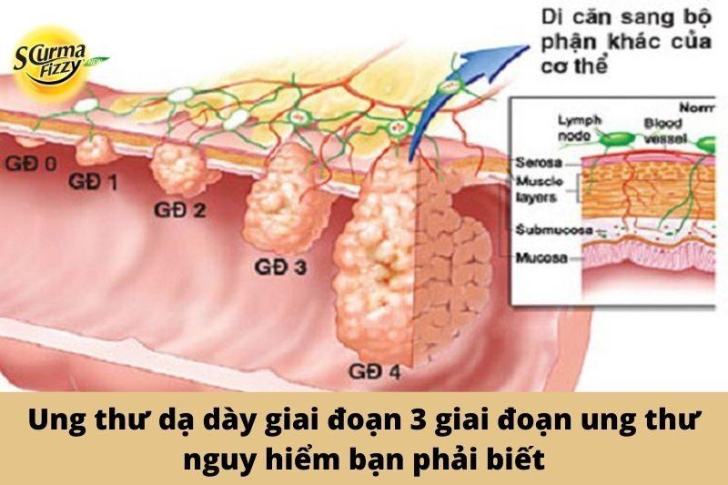 Hinh-dai-dien-ung-thu-da-day-giai-doan-3