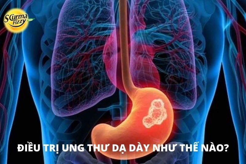 dieu-tri-ung-thu-da-day