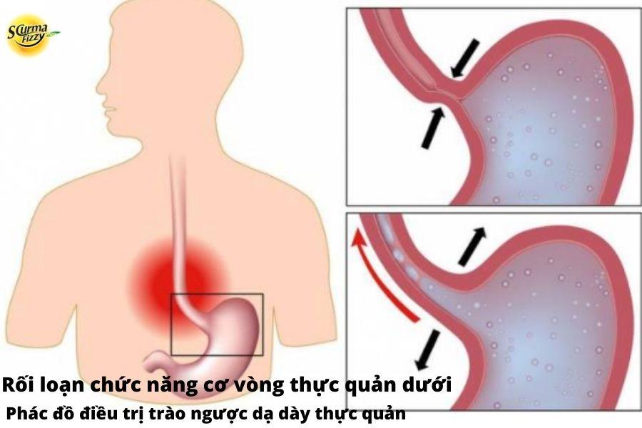 Rối loạn chức năng cơ vòng thực quản dưới