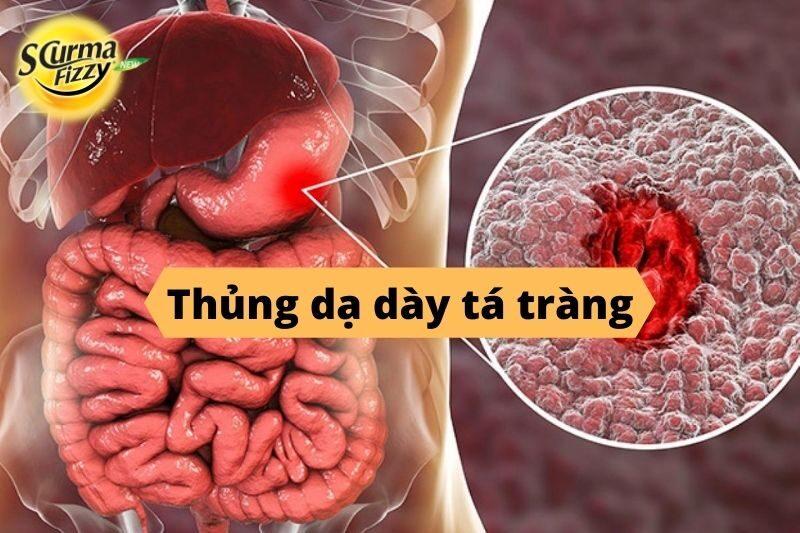 Thủng dạ dày tá tràng- Biến chứng nguy hiểm đến tính mạng