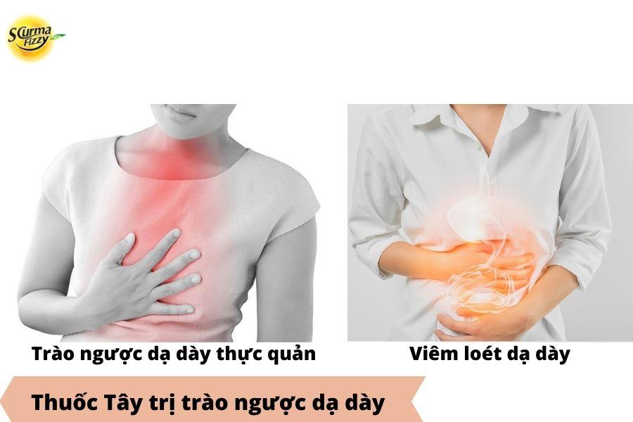 So sánh trào ngược dạ dày thực quản và viêm loét dạ dày