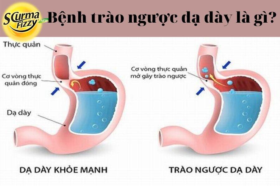 Trao-nguoc-da-day-2.pnj