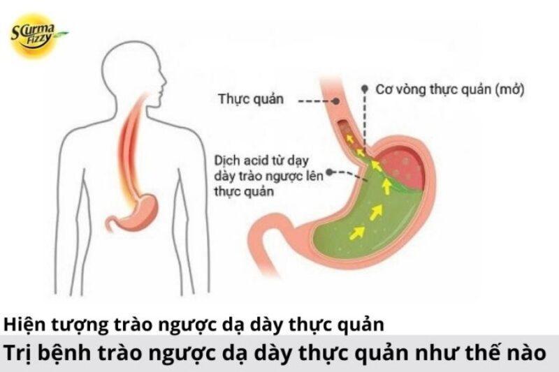 Tri-benh-trao-nguoc-da-day-thuc-quan-nhu-the-nao