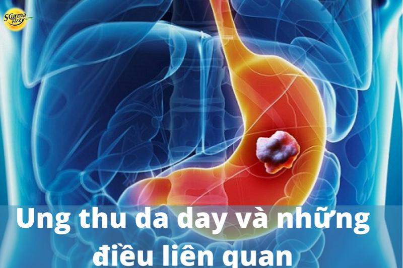 ung-thu-da-day-1
