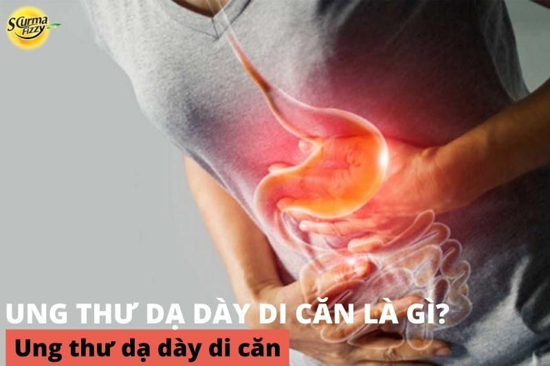 ung-thu-da-day-di-can-1