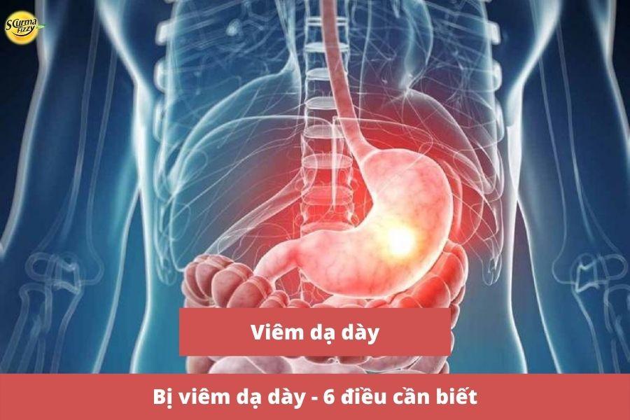 bi-viem-da-day-6-dieu-can-biet-1