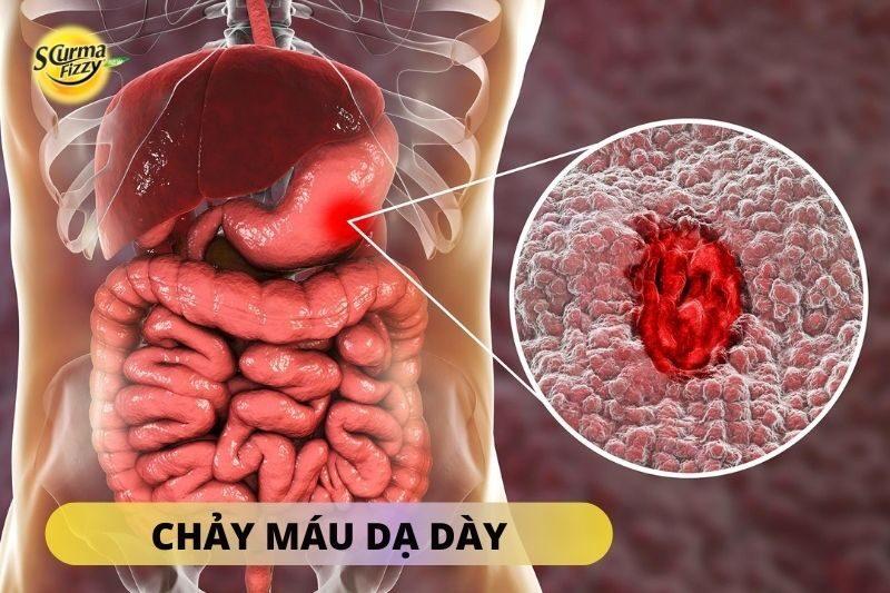 chay-mau-da-day