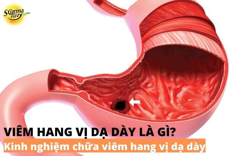 kinh-nghiem-chua-viem-hang-vi-da-day