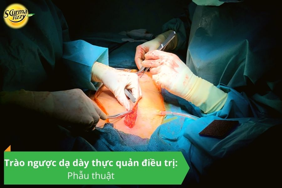 Trào ngược dạ dày thực quản điều trị Phẫu thuật