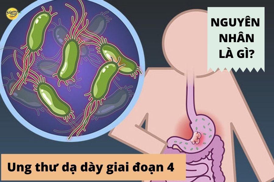 Nguyên nhân gây ung thư dạ dày giai đoạn 4