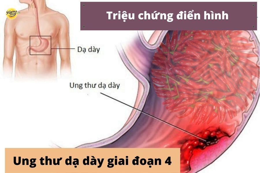 Các triệu chứng ung thư giai đoạn cuối biểu hiện rõ ràng