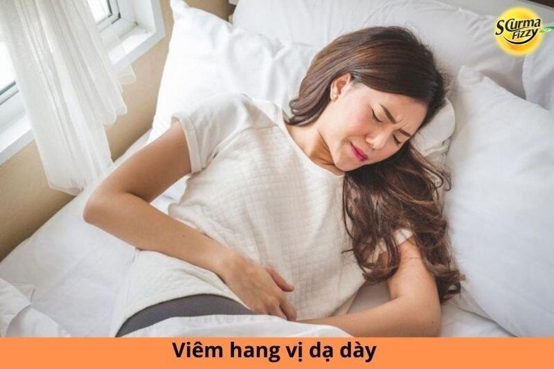 viem-hang-vi-da-day