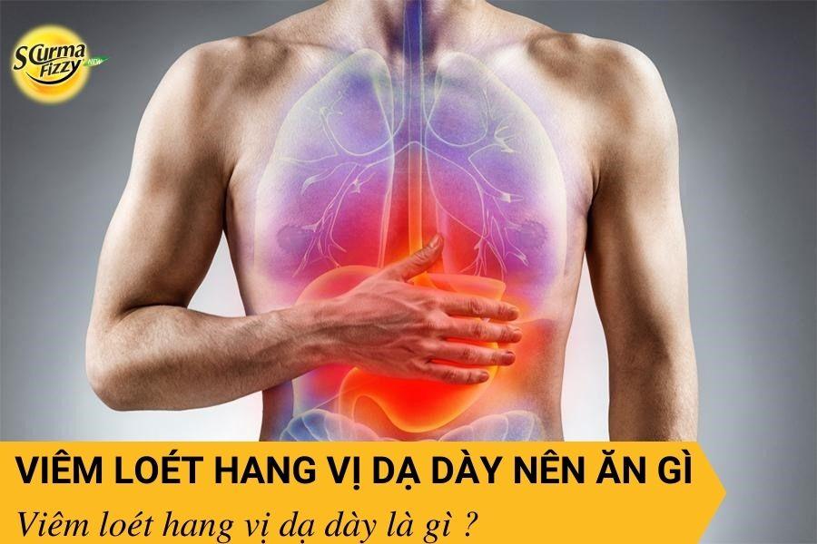 viem-loet-hang-vi-da-day-nen-an-gi-2
