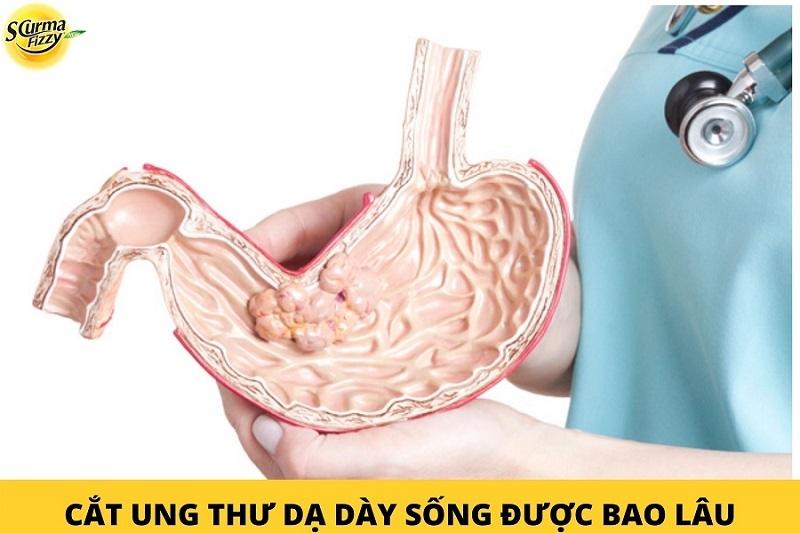 cat-ung-thu-da-day-song-duoc-bao-lau.