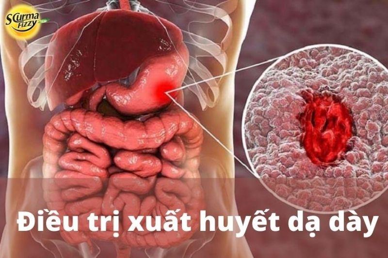 dieu-tri-xuat-huyet-da-day-71