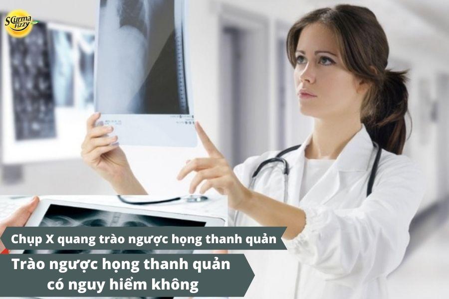Chụp X quang là gì
