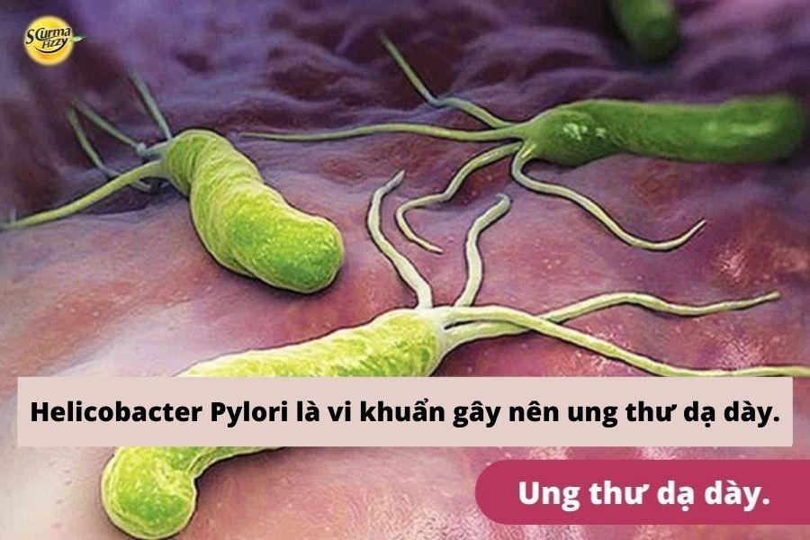 Vi khuẩn H.pylori yếu tố nguy cơ gây ung thư dạ dày.